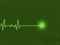 Takmer polovicu infarktov nesprevádzajú zjavné symptómy
