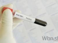 Ľudí s HIV viac trápi stigmatizácia než samotný vírus
