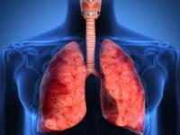 Chronická obštrukčná choroba pľúc trápi každého 10. Slováka