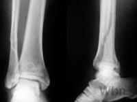 Zlomeniny budú možno liečiť s pomocou skrutiek z hodvábu